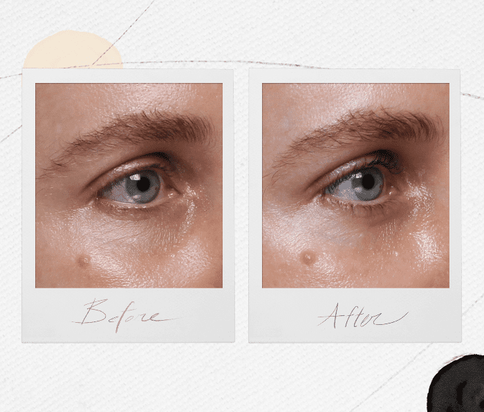 What You Need to Know Before Getting Under-Eye Fillers