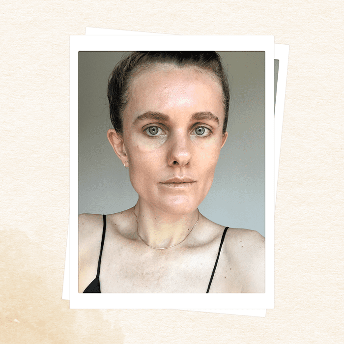 I Used My Own Blood as an Anti-Aging Serum