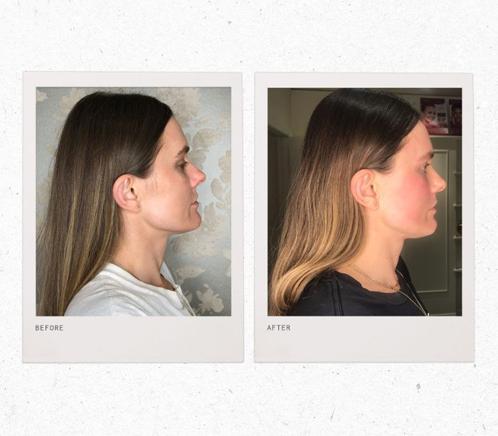 Forma Laser Review: See the Before and After