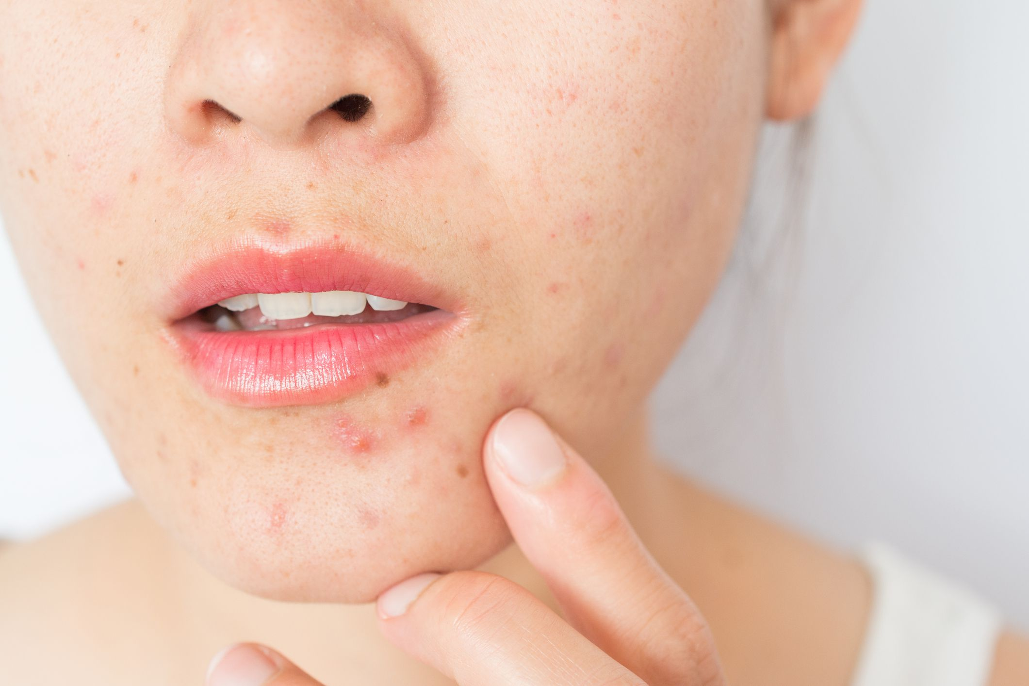 Dermatologists Say This Is How To Treat Hormonal Acne